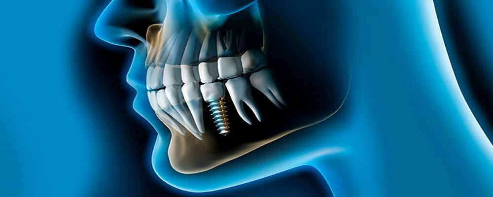 Curso Patología del Seno Maxilar relacionada con la cirugía de implantes